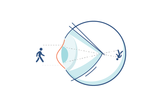 Illustration of an irregular cornea.