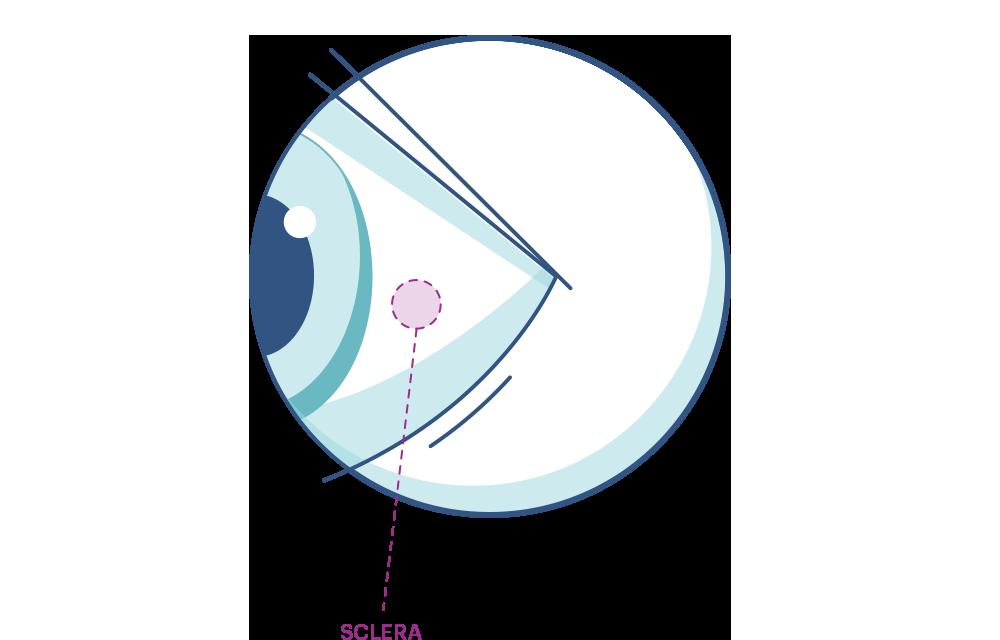 Eye illustration showing Sclera